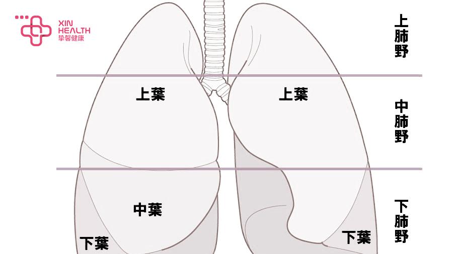 各肺野分布情况图