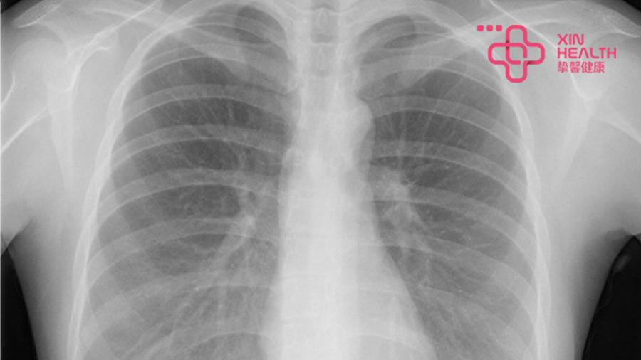 正常胸部X光影像