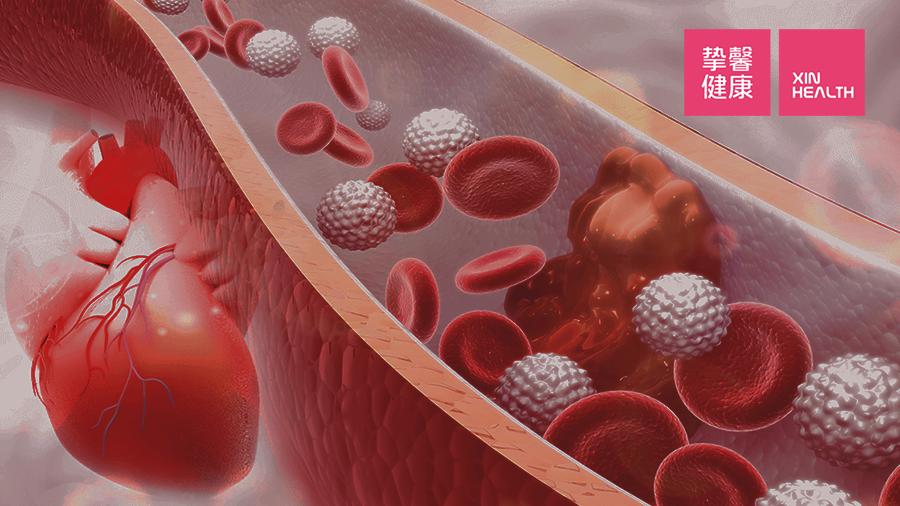 动脉粥样硬化常常会阻塞血管
