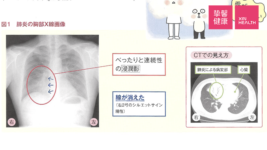 肺炎患者的胸部X光影像资料