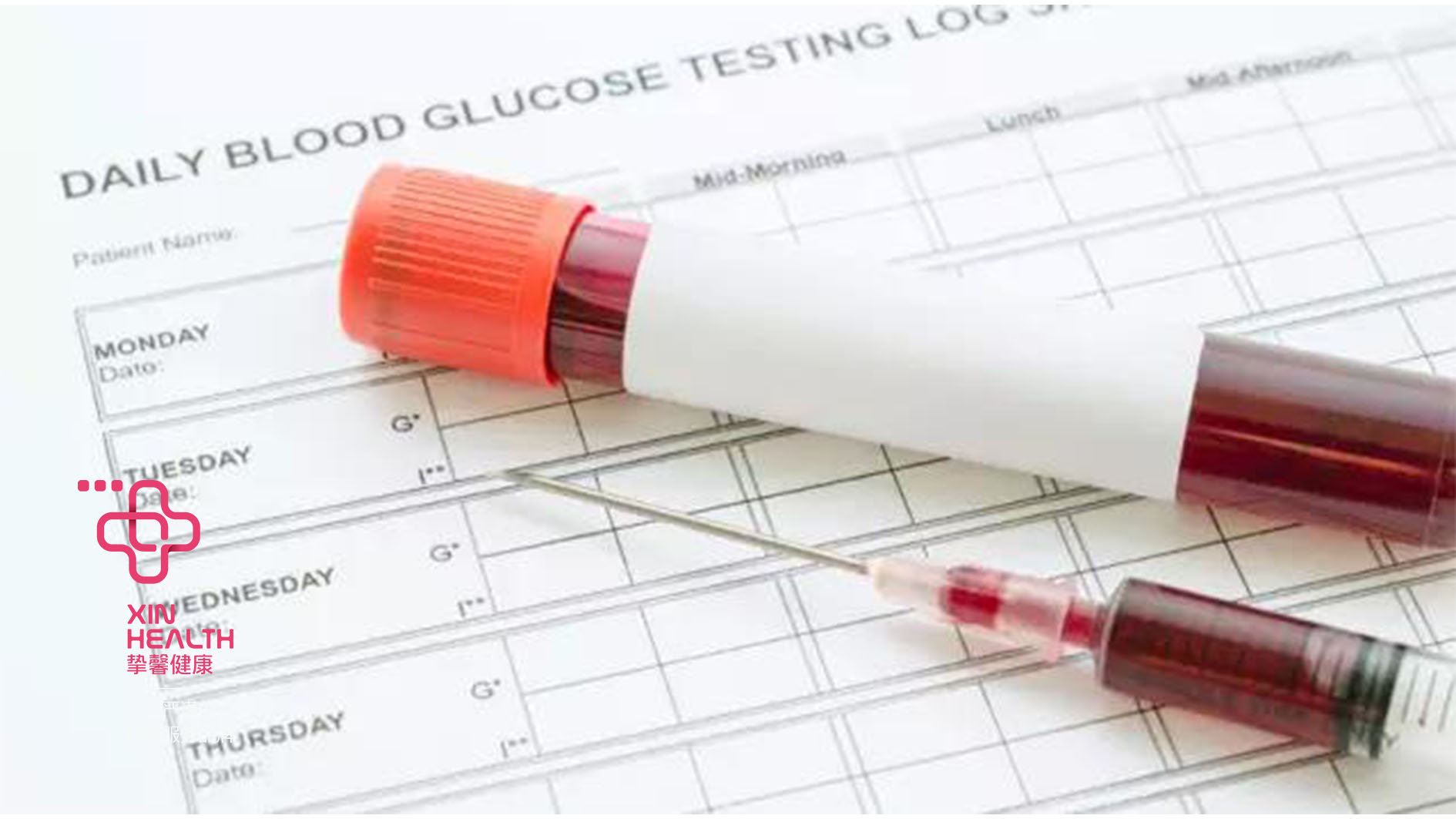 血液检查是糖尿病较为常见的检查之一