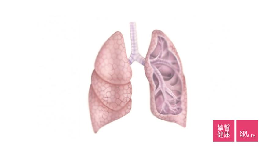 吸入性肺炎的发病部位在肺的底部