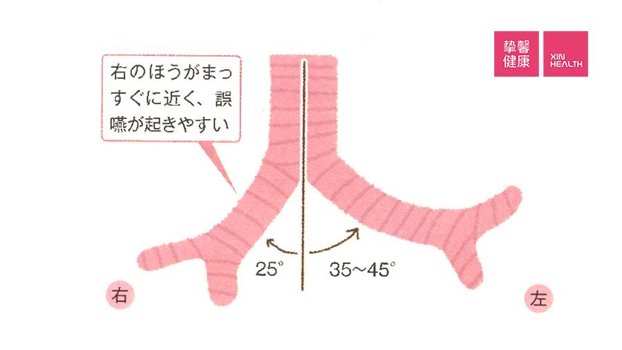 气管分叉部位不同的分叉角度