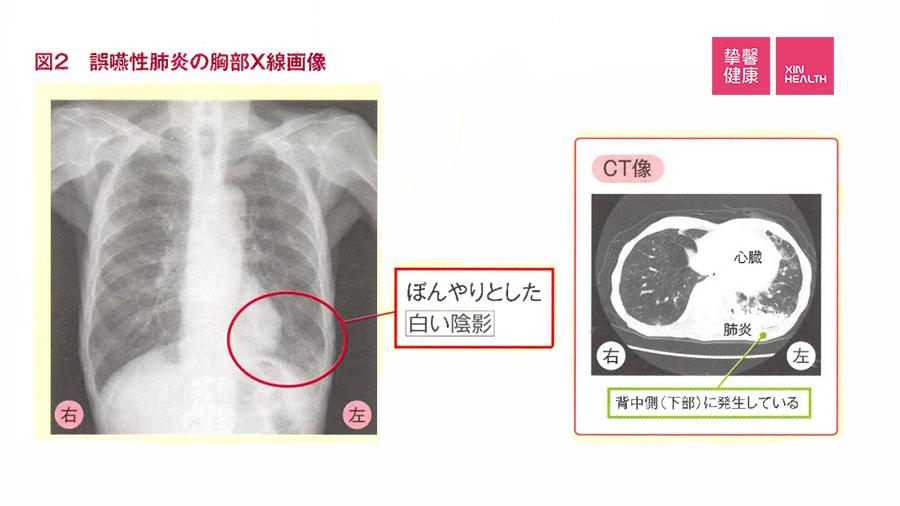 吸入性肺炎的胸部X光影像