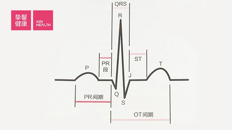 心电图简要示意图