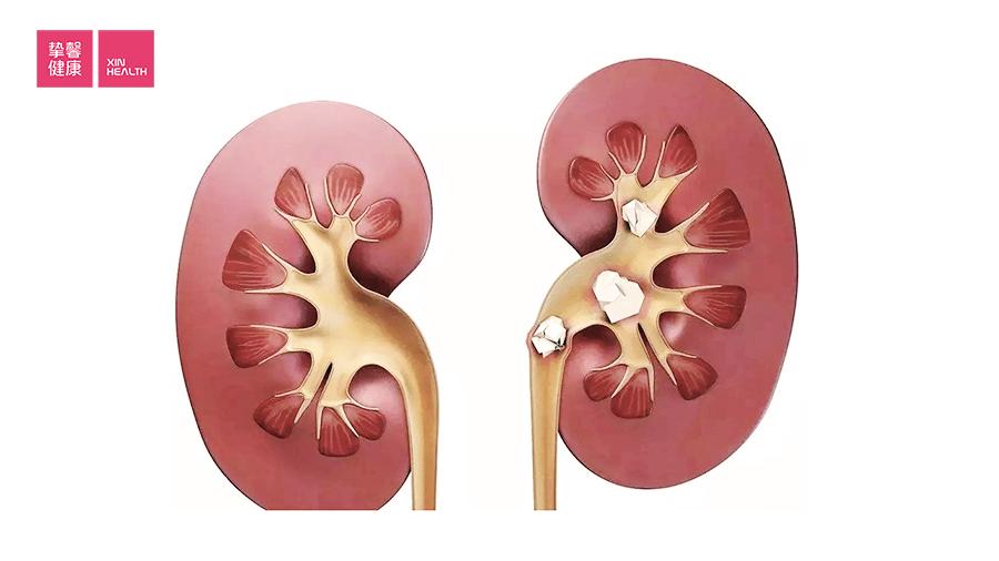 正常的肾脏和有结石的肾脏的对比