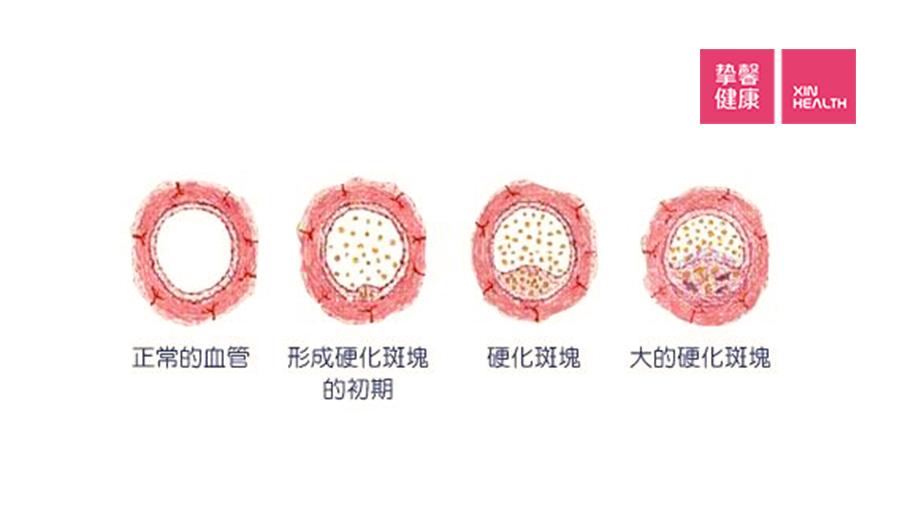 动脉血管长了斑块,就会变窄,影响血流