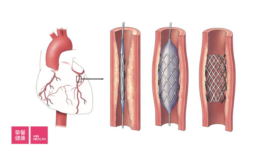 心脏支架工作原理