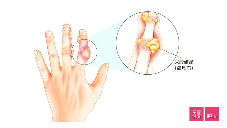 痛风如果不加以控制,会在关节处生成痛风石