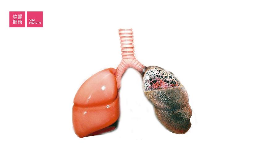 吸烟会导致肺癌