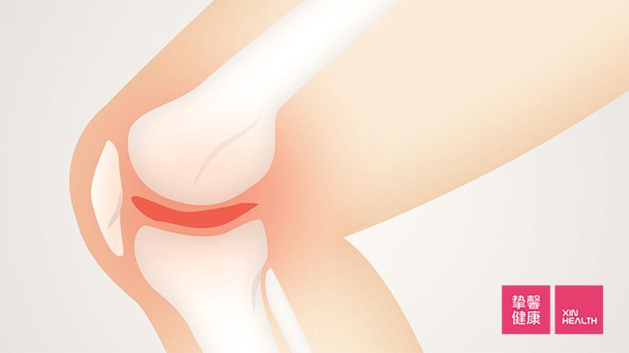 关节炎是由于关节过度使用引起的炎症疾病