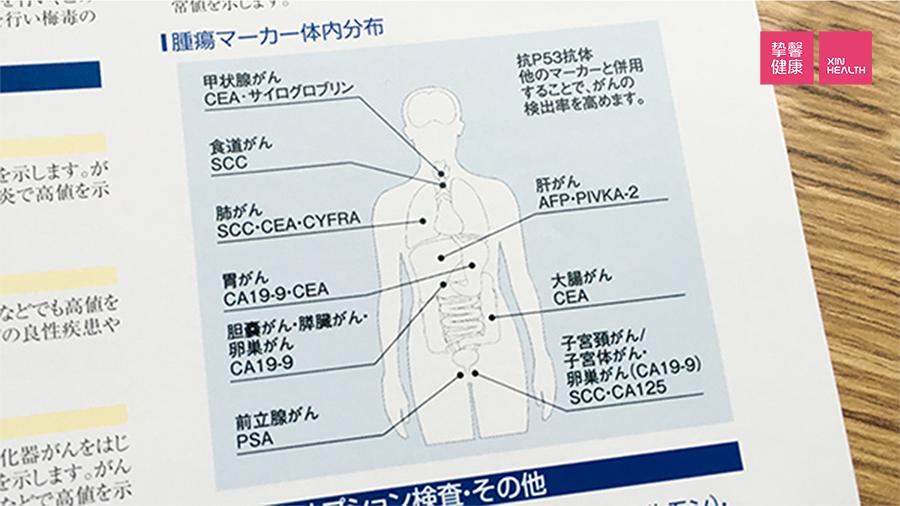 肿瘤在人体的分布图