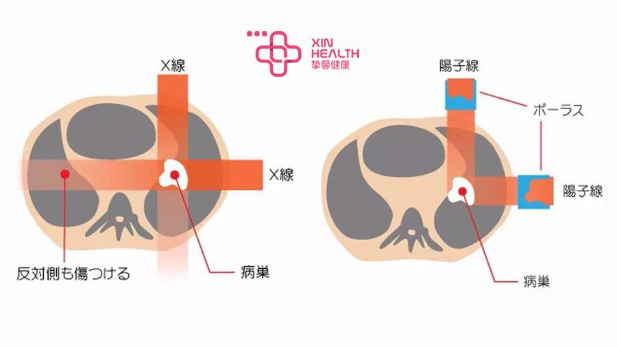 X线(左)和质子线(右)对人体损伤的对比