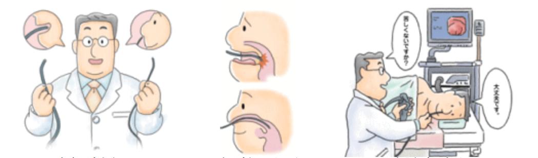 鼻腔进入式胃镜和口腔进入式胃镜的对比区别