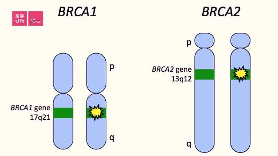 这两个基因突变,就有可能造成乳腺癌