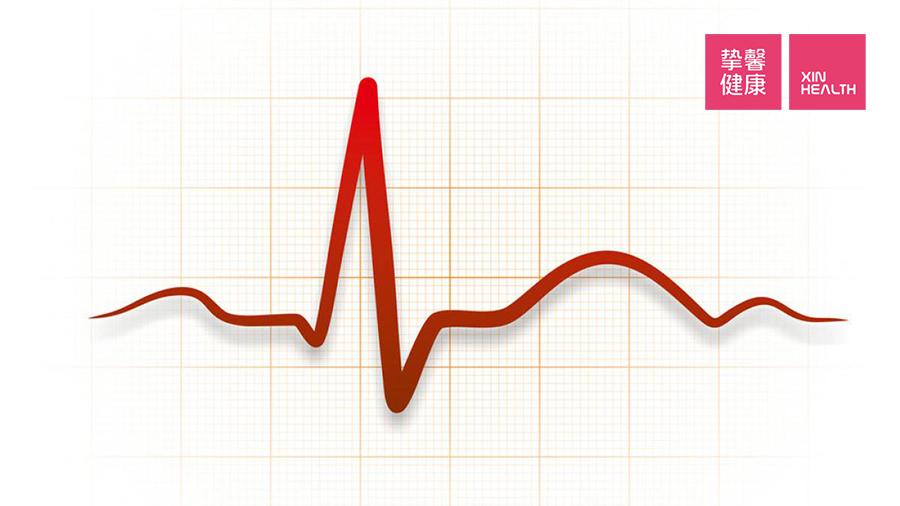 心电图最终会成为一直线