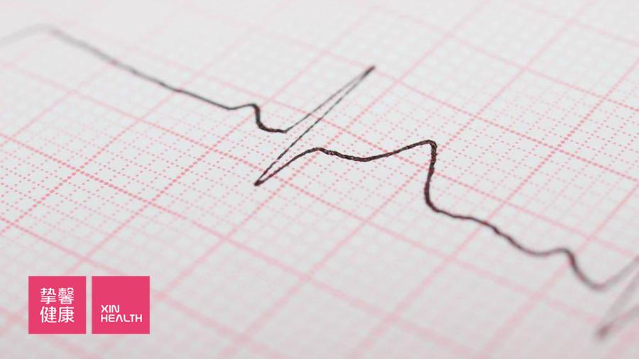 预防心血管疾病,需要定期检查心电图