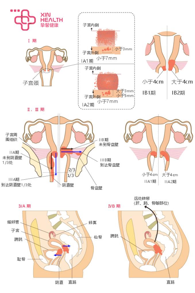 宫颈癌的分期