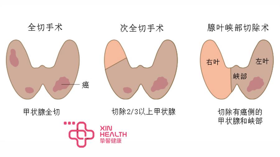 甲状腺的3种手术治疗方案