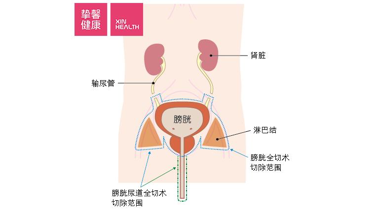 膀胱癌手术切除范围