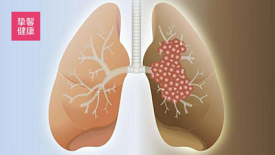 正常的肺和肺癌的差别