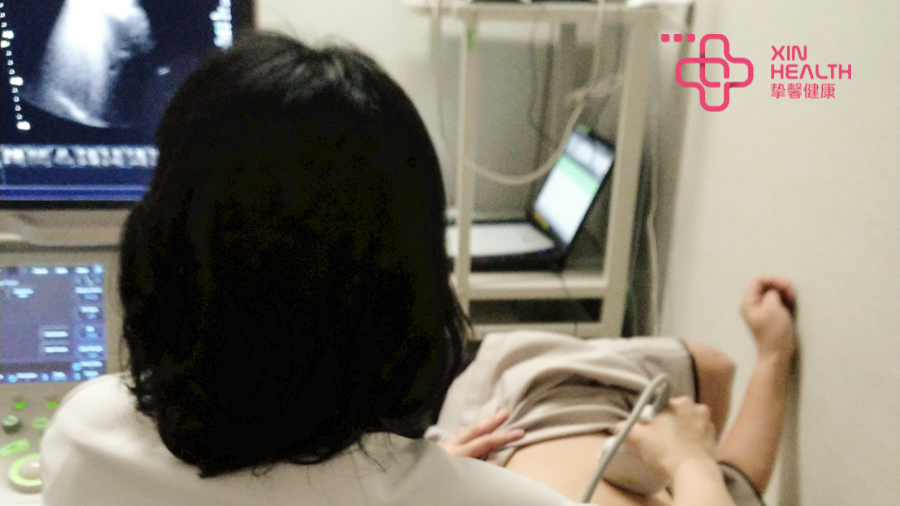 日本高级体检 腹部超声检查