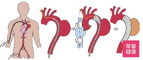 主动脉支架移植