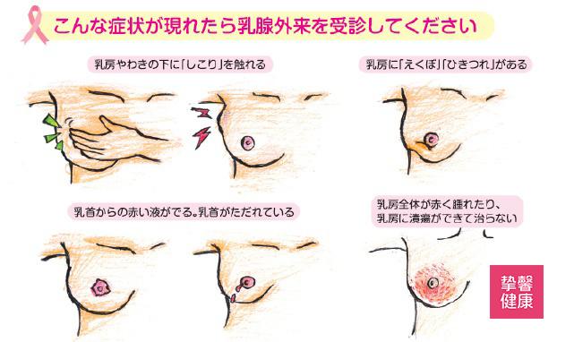 日本高级体检 乳腺疾病自查手册