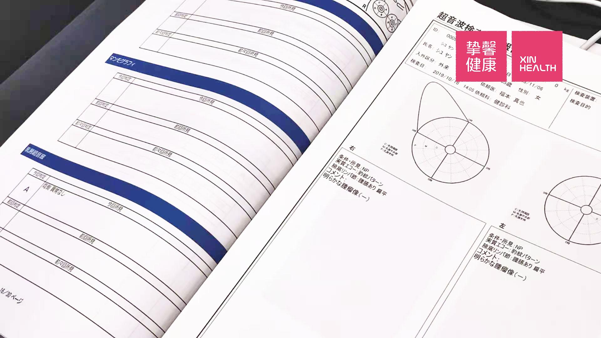 日本高级体检 乳腺检查报告