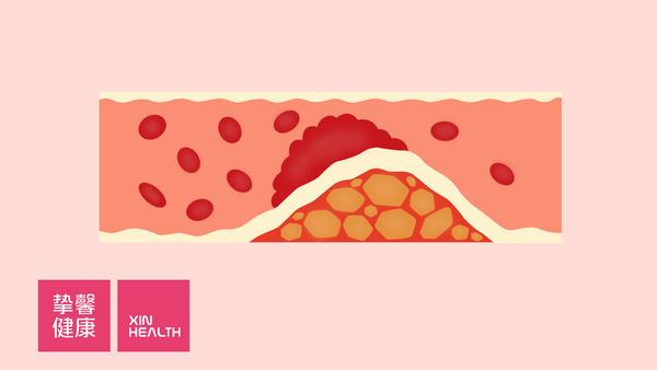 动脉硬化检测:测量血管的年龄