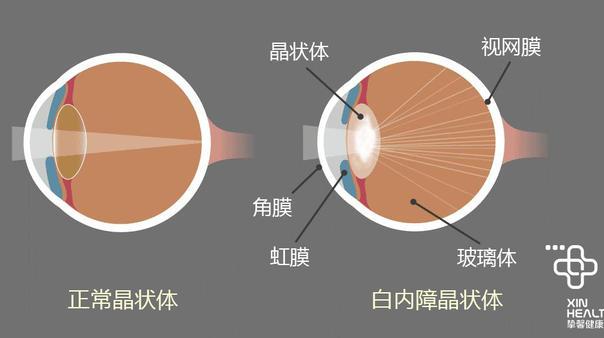 三大致盲眼病之一:白内障