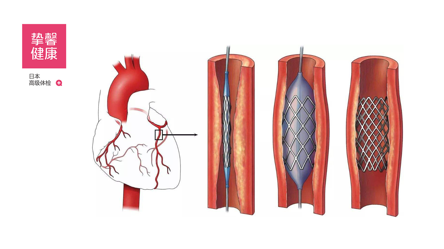 目前医疗已出现的心脏支架分哪几类?
