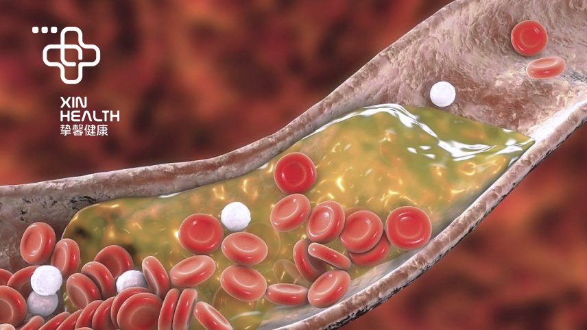 甘油三酯(中性脂肪)Triglyceride - 血脂检测指标