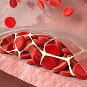 血小板 Platelet