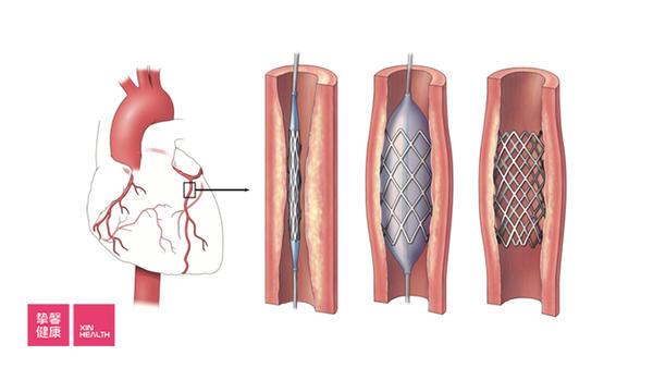 医学知识讲座 20:冠心病反映全身血管问题(下)