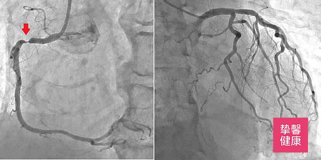 心脑血管疾病介绍 —— 缺血性心脏病