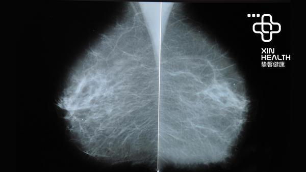 今日大实话 32:产前诊断很重要,21岁以上的女性最好定期筛查宫颈癌