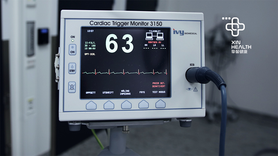 心电图、心脏彩超、冠脉造影有什么区别?