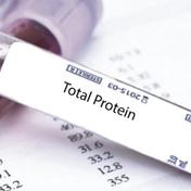 总蛋白 Total Protein