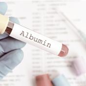 白蛋白 Albumin