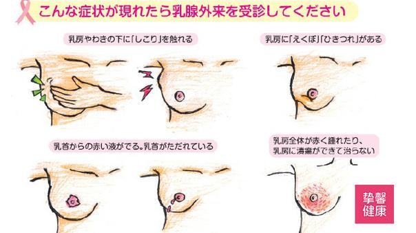 乳腺医学科普01:为什么乳腺健康是全身性问题?