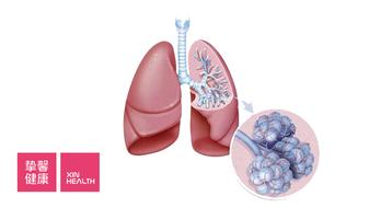 体检查出肺结节,应该如何面对?
