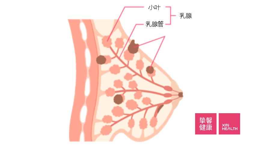 什么是乳腺癌?如何发现和治疗?(上)