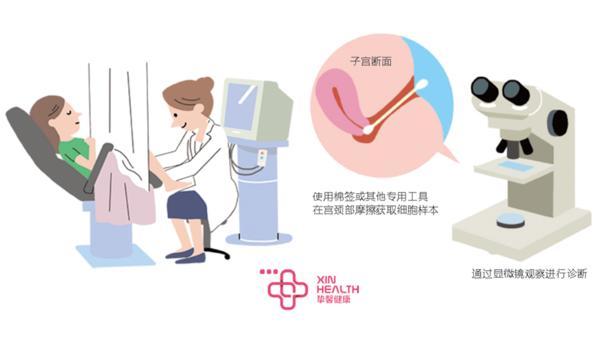什么是宫颈癌?如何预防和治疗?