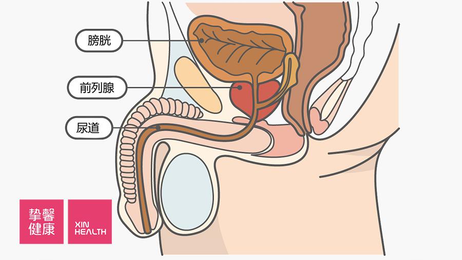 该如何保护前列腺?养成这些好习惯,前列腺不生病