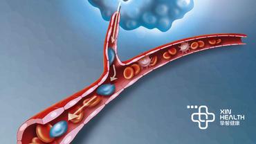 癌症是怎么转移的?原理是什么?