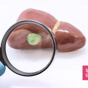 尿胆原 Urobilinogen