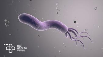 幽门螺杆菌感染后会发展成为胃癌吗?