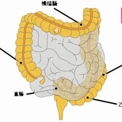 消化外科最常见的手术——肠癌手术