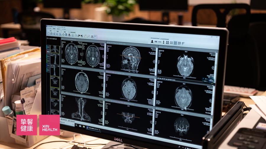 去日本癌症体检常见的认知误区